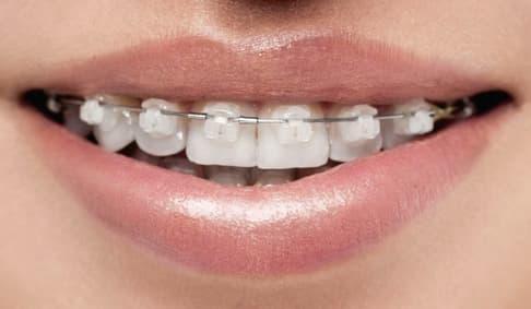 Ortodoncia Ceramica