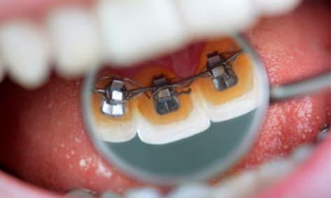 Ortodoncialingual