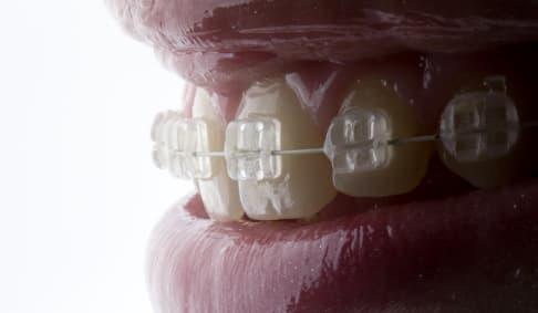 Ortodonciazafiro
