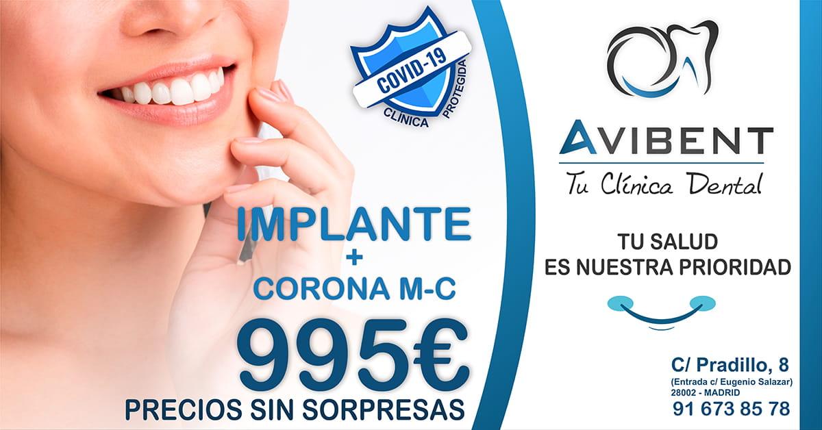 Implante Dental Avibent